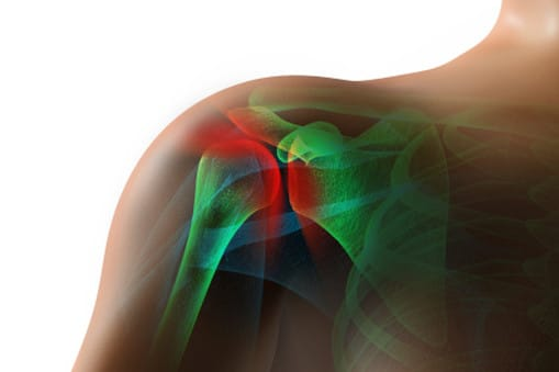 Rotator Cuff Disease Condition